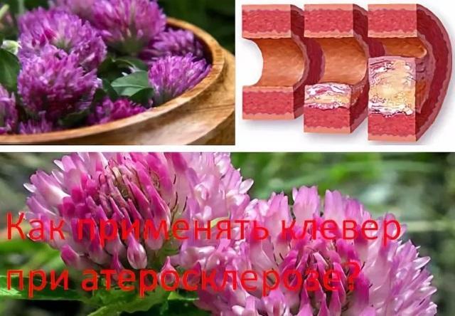 Клевер красный: лечебные свойства при атеросклерозе