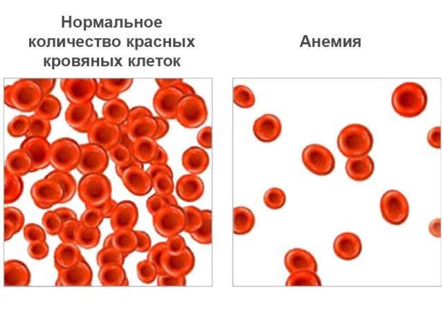 Как повысить гемоглобин в домашних условиях