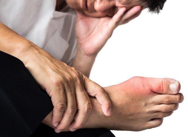 подагра у мужчин: симптомы, диета.