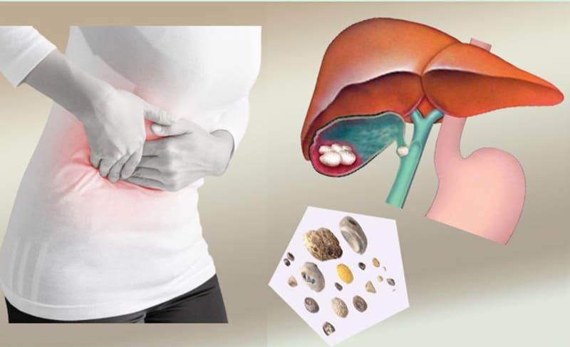 Какие продукты растворяют камни в желчном пузыре. Симптомы болезни